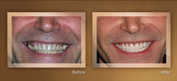 Cosmetic Dentistry Los Angeles 2 Smile Gallery Video