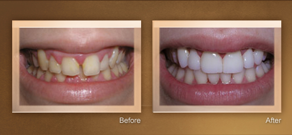 Cosmetic Dentistry Sid Solomon 2 Smile Gallery Video