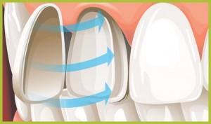 Veneers1 300x177 Porcelain Veneers